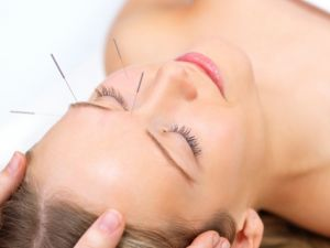 Acupuncture Used As Infertility Therapy
